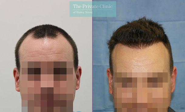 fue hair transplant procedure london before after photos results dr raghu reddy 083RR