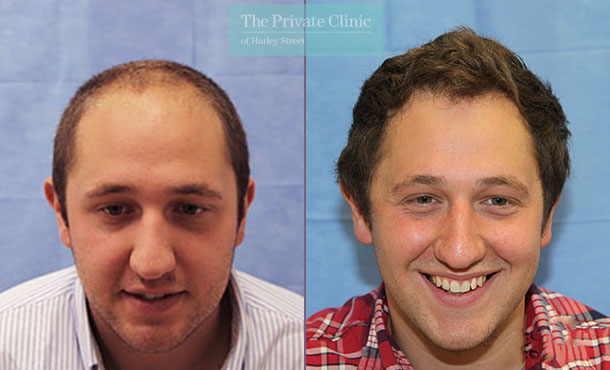 fue hair transplant procedure london before after photos results dr raghu reddy 105RR