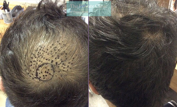 fue hair transplant recovery before after photo results dr luca de fazio 003LDF