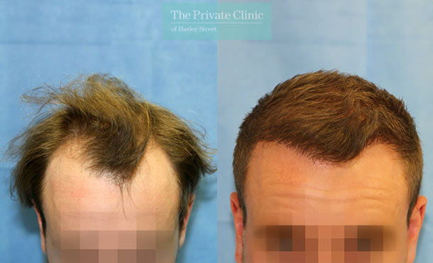 fue hair transplant recovery before after photos results dr raghu reddy 063RR