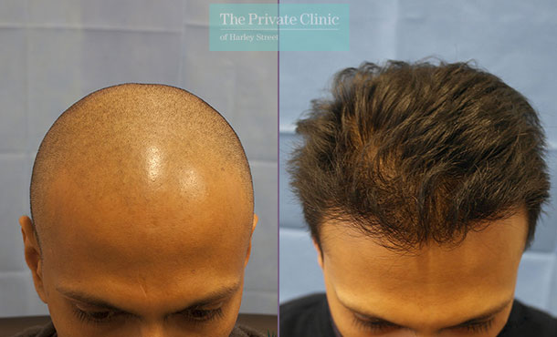 fue hair transplant surgery before after photos results dr raghu reddy 082RR
