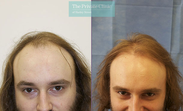fue hair transplant top surgeon london before after photos results dr raghu reddy front 079RR