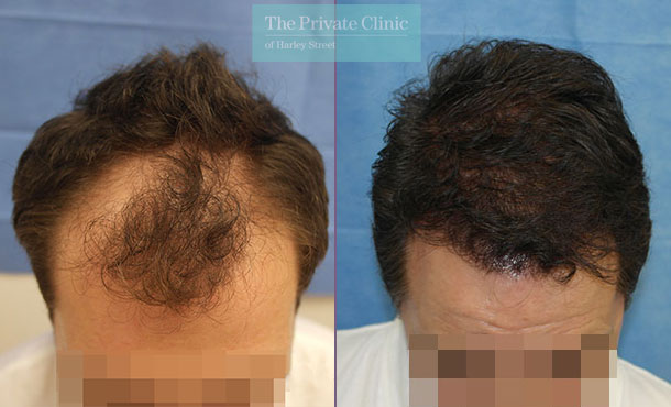 fue hair transplant top surgeon uk before after photos results dr raghu reddy 096RR