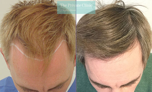 fue hair transplant uk before after photo results mr michael mouzakis 011MM