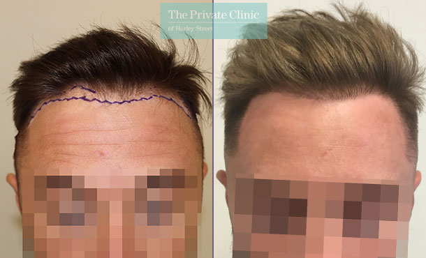 fue hair transplantation before after photo results mr michael mouzakis front 010MM