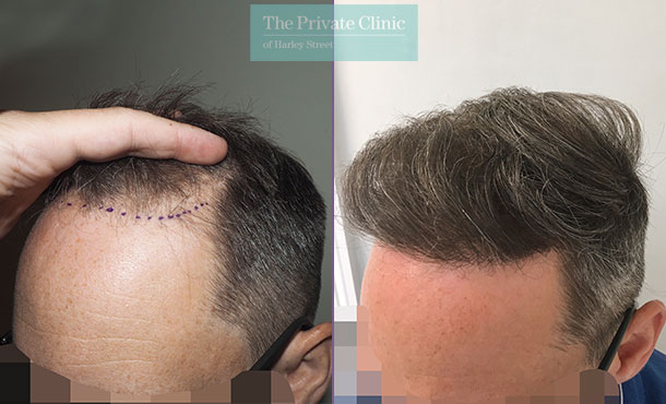 fue hair transplantation before after photo results mr michael mouzakis side 014MM