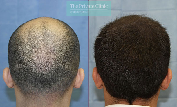 fue hair transplantation london before after photo results dr raghu reddy back 111RR