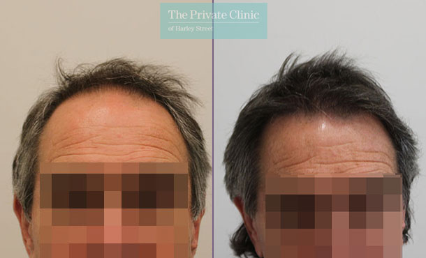 fue hair transplantation london before after photos results dr raghu reddy 092RR