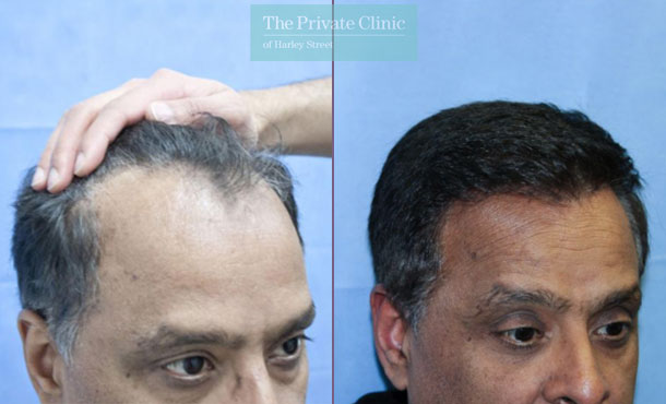 fue hair transplantation london before after photos results dr raghu reddy 112RR