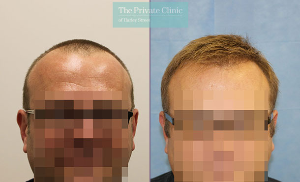 fue hair transplantation london before after photos results dr raghu reddy front 087RR
