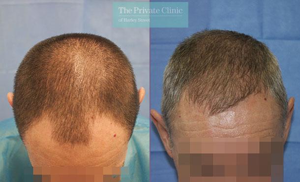 fue hair transplantation london harley street before after photo results dr raghu reddy 091RR