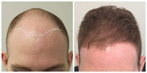 hair restoration fue transplant hair loss manchester before after photos the private clinic 300x150 1