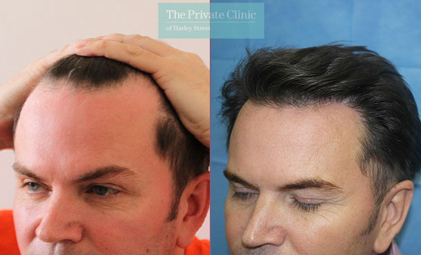 hair restoration london clinic fue hair transplant before after photo results dr raghu reddy side 072RR