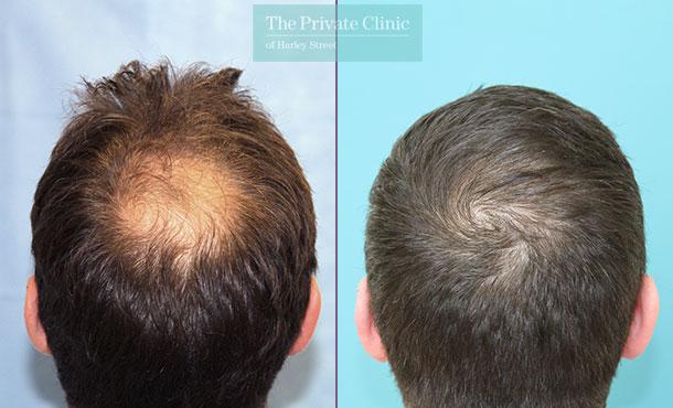 hair restoration uk fue hair transplant before after photo results dr raghu reddy back 129RR
