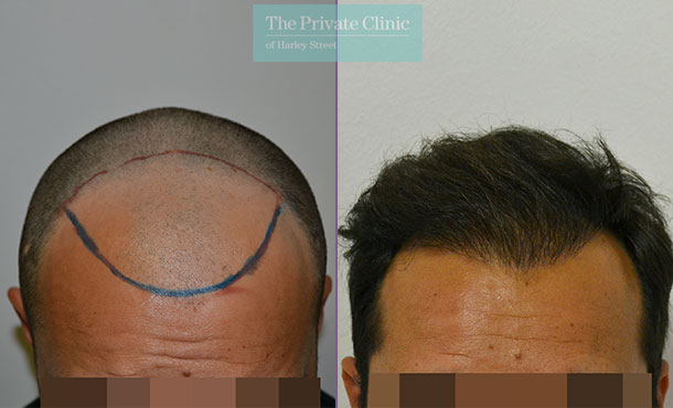 hair transplant before after photo FUE results dr luca de fazio 001LDF