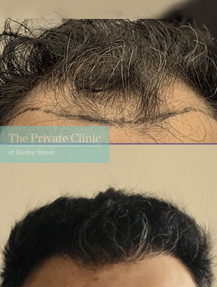 hair transplant before after photo fue manchester results dr furqan raja 002FR