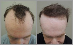 hair transplant before after photos fue mark tam bristol web 300x185 1