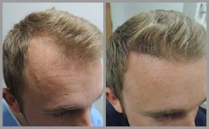 hair transplant before after photos fue mark tam leeds web 300x185 1