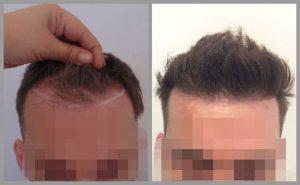 hair transplant before after photos fue michail mouzakis birmingham web 300x185 1