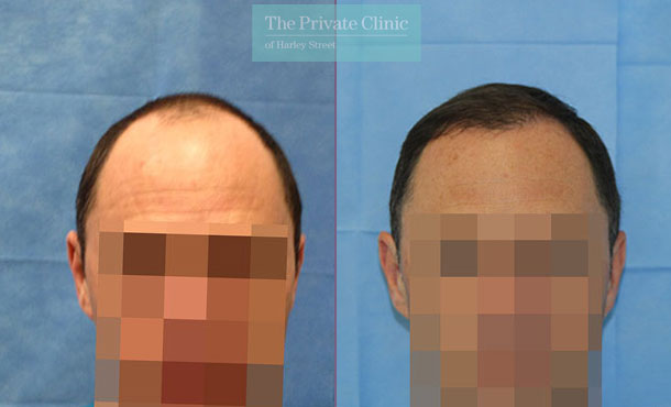 hair transplant before after photos london uk results dr raghu reddy front 100RR