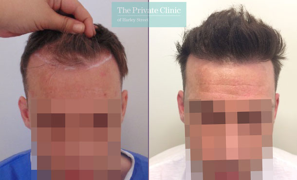 hair transplant bristol before after photo results mr michael mouzakis front 001MM