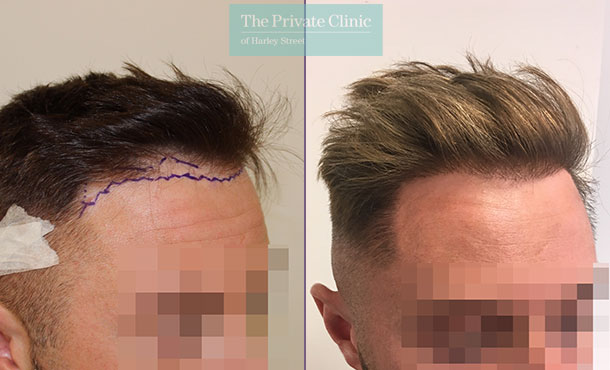 hair transplant clinic bristol before after photos results mr michael mouzakis side 010MM