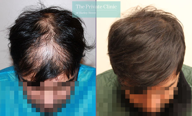 hair transplant london before after photos results dr raghu reddy 001RR