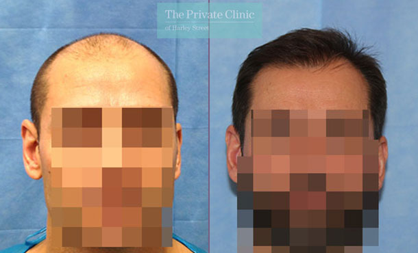 hair transplant london before after photos results dr raghu reddy 019RR front