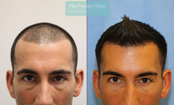 hair transplant london before after photos results dr raghu reddy 066RR