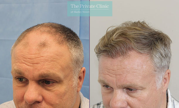 hair transplant london before after photos results dr raghu reddy side 088RR