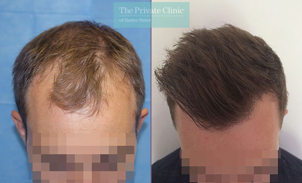 hair transplant london clinic before after photos results dr raghu reddy 098RR
