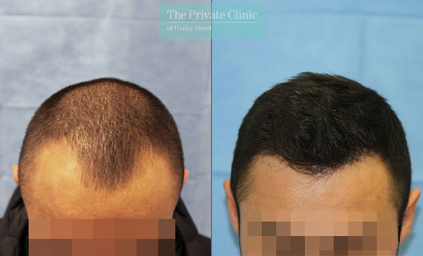 hair transplant london fue before after photos results dr raghu reddy 103RR