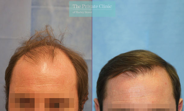 hair transplant london harley street before after photos results dr raghu reddy front 093RR