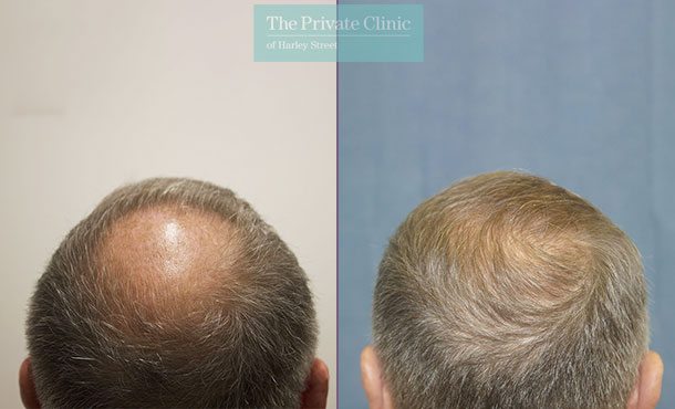 hair transplant procedure before after london results dr raghu reddy crown 085RR