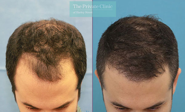 hair transplant procedure before after photo london results dr raghu reddy 012RR front