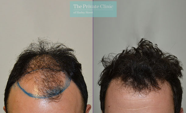 hair transplant procedure before after photos results dr luca de fazio 002LDF