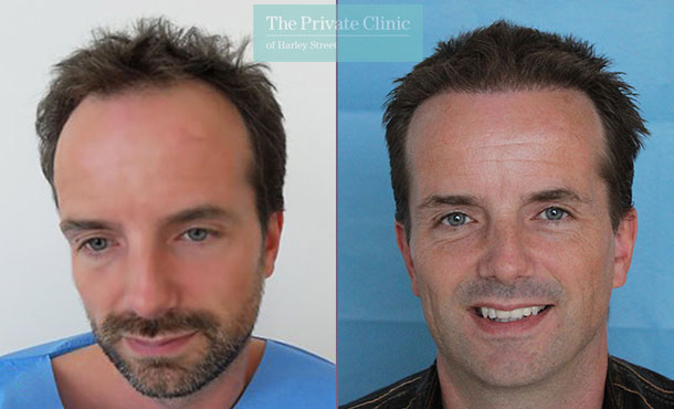 hair transplant procedure before after photos results dr raghu reddy 022RR front