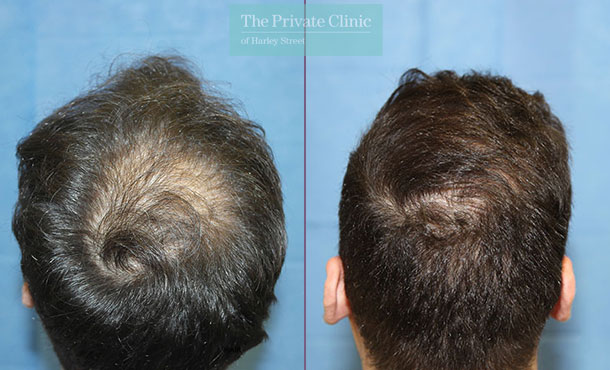 hair transplant procedure london before after photos results dr raghu reddy crown 102RR
