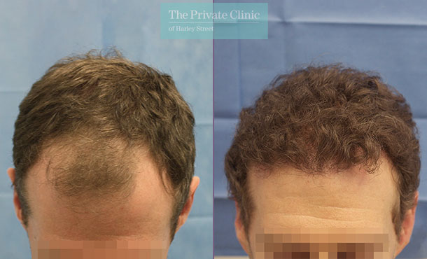 hair transplant recovery before after months photo results dr raghu reddy front 080RR