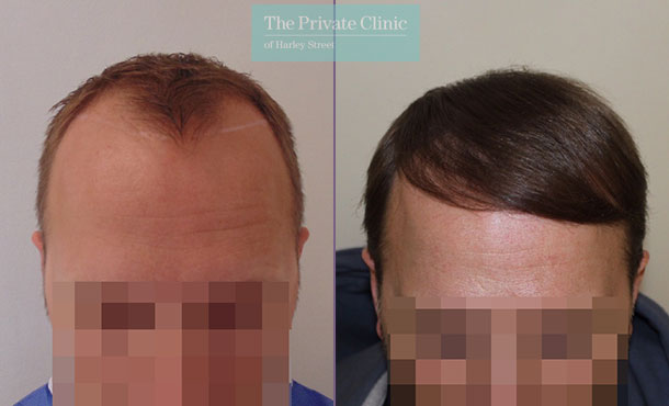 hair transplant recovery before after photo results mr michael mouzakis front 003MM