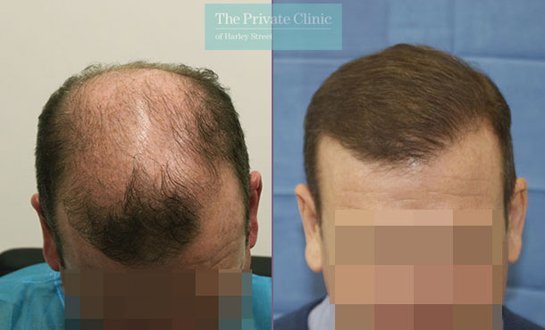 hair transplant recovery before after photos results dr raghu reddy 089RR
