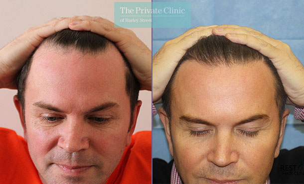 hair transplant recovery before after results dr raghu reddy front 072RR