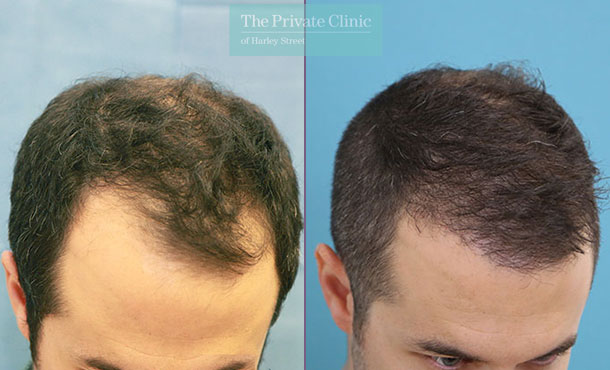 hair transplant surgery before after photo results dr raghu reddy 012RR side
