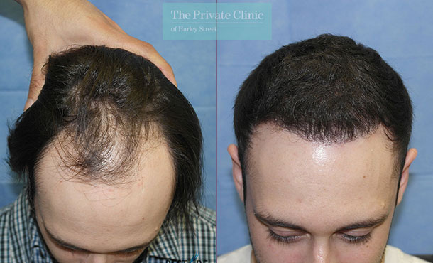 hair transplant surgery before after photos months results dr raghu reddy front 086RR