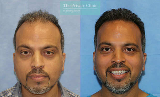 hair transplant surgery before after photos results london dr raghu reddy 110RR