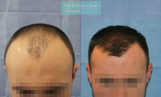hair transplant surgery grafts before after photos results dr raghu reddy front 078RR