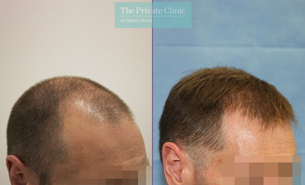 hair transplant surgery harley street before after photos results dr raghu reddy side 106RR