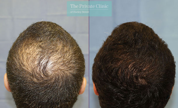 hair transplant surgery london before after photos results dr raghu reddy crown 095RR