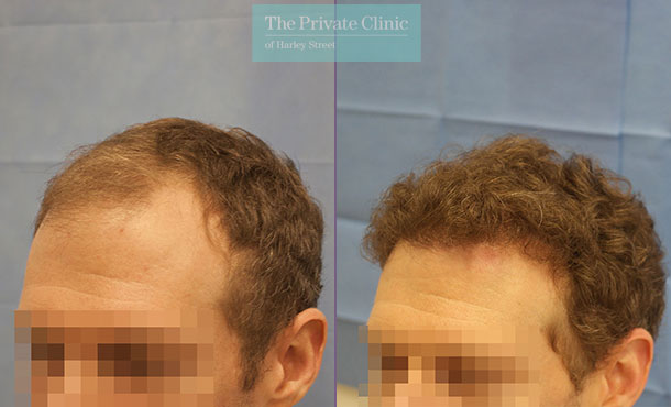hair transplant surgery london before after photos results dr raghu reddy side 080RR