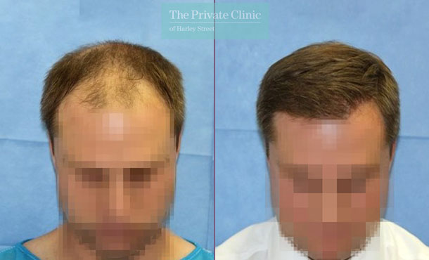 hair transplantation clinic london before after photo results dr raghu reddy 113RR